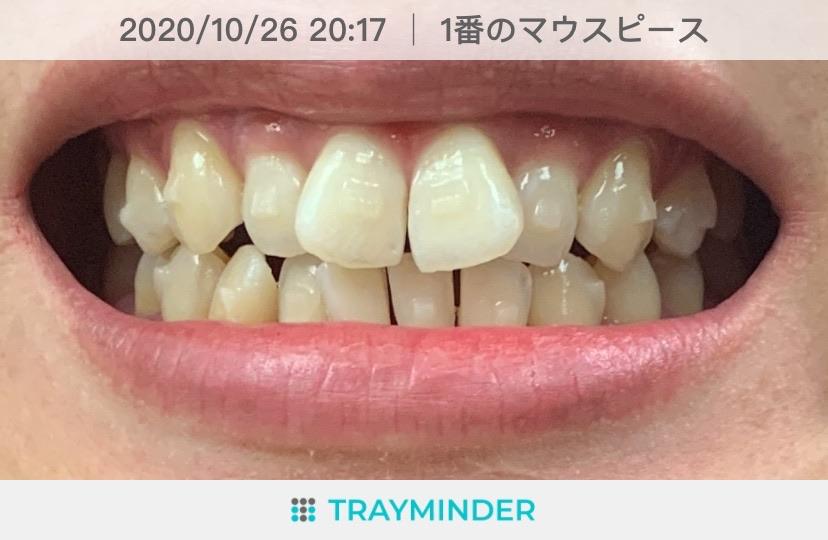 【インビザライン矯正日記】感動!!出っ歯のビフォーアフターを動画でご紹介