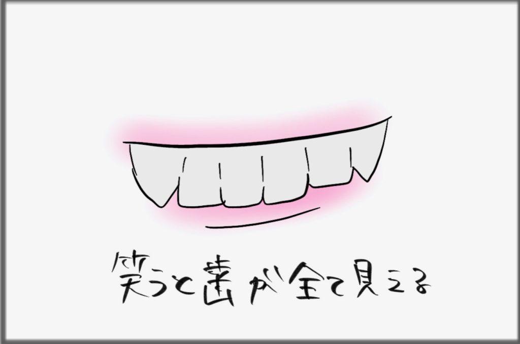 歯科矯正後の悩み【前歯の下側のラインが下唇に隠れる】